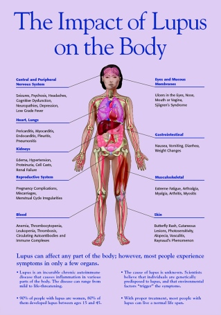 The Impact of Lupus of the Body